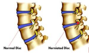 backbone disc problem